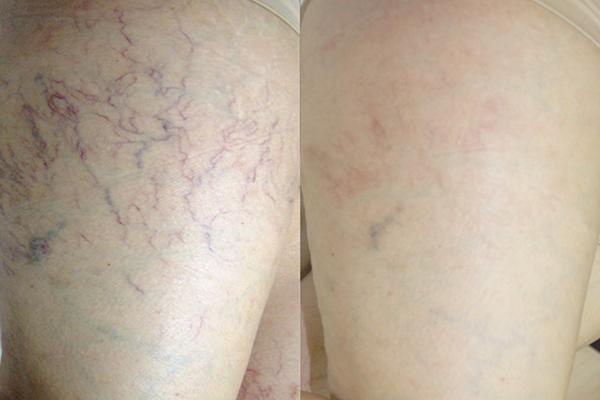 laser treatment for spider veins on legs